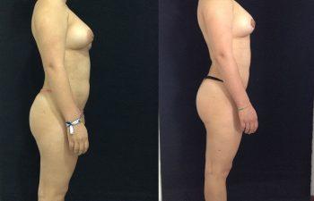 Liposucción de cintura, cadera, conejos, abdomen + Pexia Periareolar. Resultado a los 2 meses.