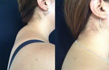 Liposucción de dorso Cervical. Resultado a los 2 meses.