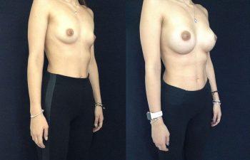 Mamoplastia de Aumento con Implante Subglandular. Resultado a los 6 meses.