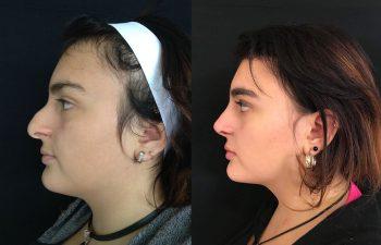Rinoplastia Mixta. Resultado a los 4 meses.