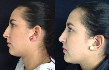 Rinoplastia Mixta. Resultado a los 6 meses.