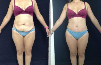 Abdominoplastia con desgrasado del colgajo y Ombligo tridimensional resultado a los 3 meses de cirugía