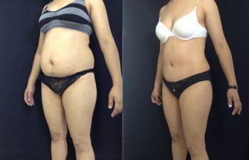 Abdominoplastia con desgrasado del colgajo y Ombligo tridimensional + Liposucción de espalda + cintura – cadera + Corrección de hernia resultado a los 3 meses de cirugía