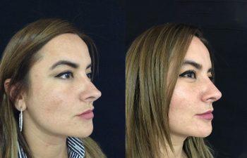 Rinoplastia secundaria Obsérvese embellecimiento y naturalidad del resultado a los 11 meses de cirugía