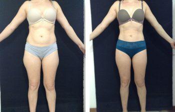 Liposucción convencional sin masajes y sin drenaje linfático resultado a los 8 meses de cirugía