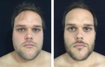 Liposucción de Papada Resultado a los 7 meses de cirugía