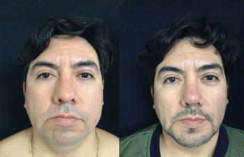 Mentoplastia + Rinoplastia + Liposucción de Papada + Bichectotomia (adelgazamiento de cachetes) Resultado a los 15 días de cirugía