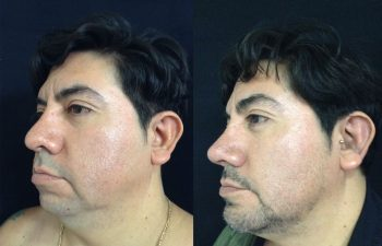 Rinoplastia + Mentoplastia + Liposucción de Papada + Bichectomia (adelgazamiento de cachetes) Resultado a los 15 días de cirugía