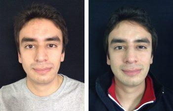 Rinoplastia Obsérvese naturalidad del resultado a los 11 meses de cirugía