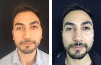 Rinoplastia resultado al año y siete meses