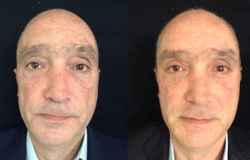 Blefaroplastia superior e inferior + cantopexia + elevación de cejas resultado a los 4 meses de cirugía