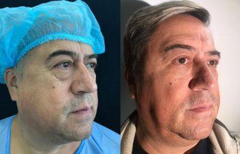 Blefaroplastia inferior con malla dérmica Resultados a los 3 meses de cirugía
