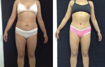 Abdominoplastia Resultado a los 3 meses de cirugía