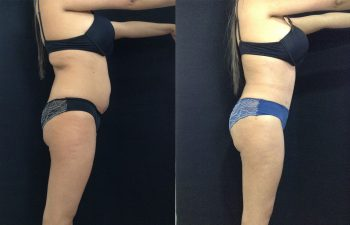 Abdominoplastia + Liposucción Resultado a los 2 meses y 7 días de cirugía