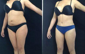 Liposucción + Abdominoplastia Resultado a los 2 meses y 7 días de cirugía