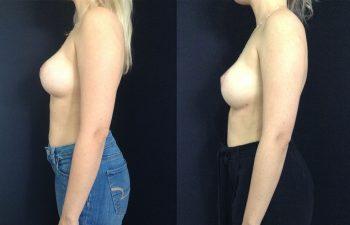 Corrección de Mamoplastia de Aumento Resultados a los 24 días de cirugía