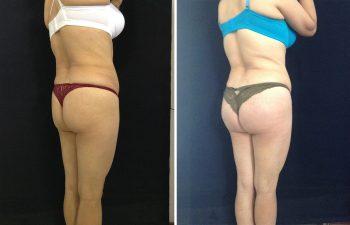 Implante de Glúteos + Remodelación con Lipoinyección grasa Resultados a los 7 meses de cirugía