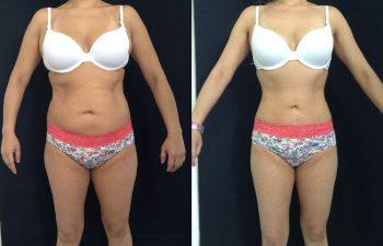 Liposucción de espalda + cintura + cadera + abdomen + piernas Resultado a los 3 meses de cirugía