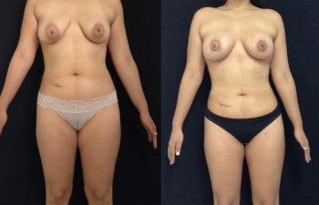 Liposucción + Cirugía Múltiple de cuerpo + Mamoplastia de Aumento + levantamiento periareolar sin cicatriz Resultado al mes y 27 días de cirugía