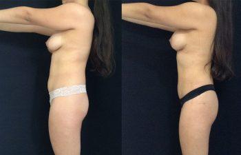 Cirugía Múltiple de cuerpo + Mamoplastia de Aumento + levantamiento periareolar sin cicatriz + Liposucción Resultado al mes y 27 días de cirugía