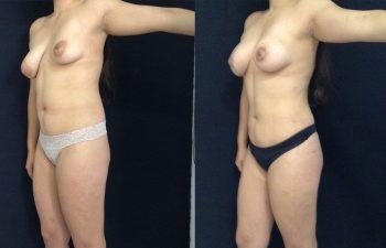 Mamoplastia de Aumento + levantamiento periareolar sin cicatriz + Liposucción + Cirugía Múltiple de cuerpo Resultado al mes y 27 días de cirugía