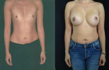 Mamoplastia de aumento retro muscular Resultado a los 4 años de cirugía