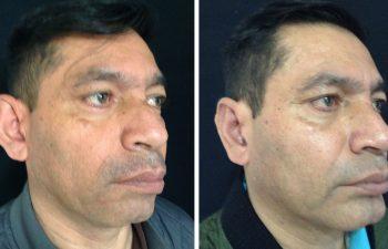 Rinoplastia + Mentoplastia + Cirugía Múltiple de cara Resultados a los 3 meses de cirugía