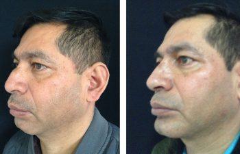 Mentoplastia + Rinoplastia + Cirugía Múltiple de cara Resultados a los 3 meses de cirugía