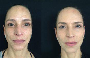 Rejuvenecimiento facial completo Resultado a los 4 meses de cirugía