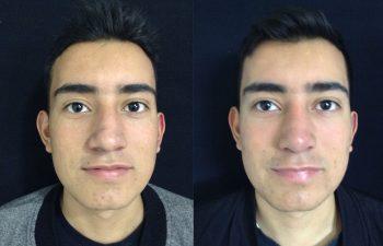 Rinoplastia de aumento + reducción de dorso y punta nasal Resultado a los 8 meses de cirugía
