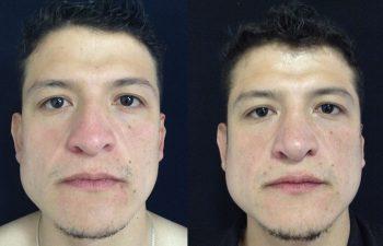 Rinoplastia de aumento + reducción de dorso y punta nasal Resultado a los 4 meses de cirugía