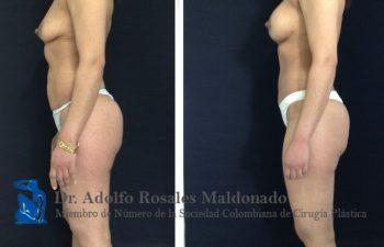 Mamoplastia de aumento sin cicatriz visible + Abdominoplastia + Liposucción de Cintura Resultados a los 3 meses