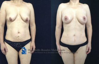 Mamoplastia de aumento con levantamiento peri areolar + Abdominoplastia + Liposucción de pliegue axilar posterior + espalda + cintura + cadera Resultados al año