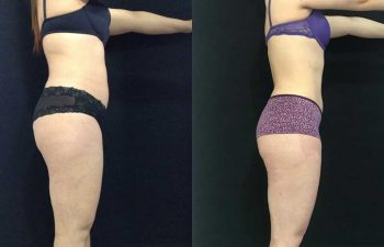 Abdominoplastia + lipoescultura resultados a los 8 meses de cirugía.