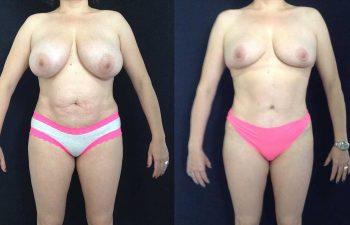 Cirugía múltiple del cuerpo: Mamoplastia de reducción + abdominoplastia resultado a los 5 meses de cirugía.