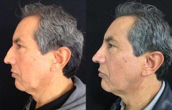 Disminución de dorso óseo + colocación de Spreader Graft + colocación injerto pared lateral + definición punta nasal resultado a los 5 meses de cirugía.