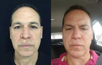 Aumento de radix + aumento dorso cartilaginoso + definición y proyección punta nasal resultado al año de cirugía.
