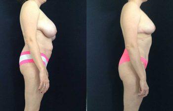 Mamoplastia de reducción + abdominoplastia resultado a los 5 meses de cirugía.