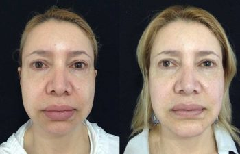 Mentoplastia + bichectomia + Queiloplastia labio superior.
