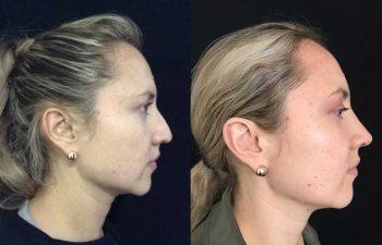Disminución de dorso cartilaginoso + colocación de Spreader Graft + aumento de punta nasal + osteotomías resultado a los 9 meses y 10 días de cirugía.