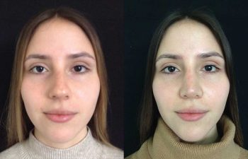 Reducción dorso cartilaginoso y óseo + aumento de radix + Spreader Graft + definición de punta nasal + osteotomías resultados a los 8 meses de cirugía.